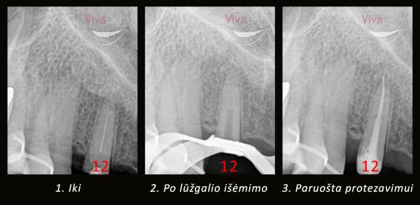 endodontija_003
