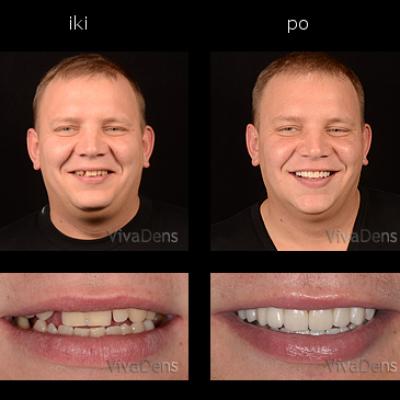 Estetinis protezavimas su CAD/CAM