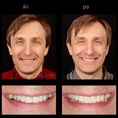 Implantacija ir estetinis protezavimas
