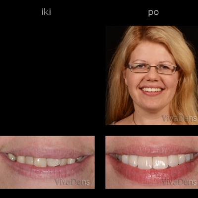 Greitoji estetinė suaugusiųjų ortodontija ir CEREC restauracijos