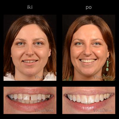 Greitoji estetinė suaugusiųjų ortodontija.Tarpų uždarymas