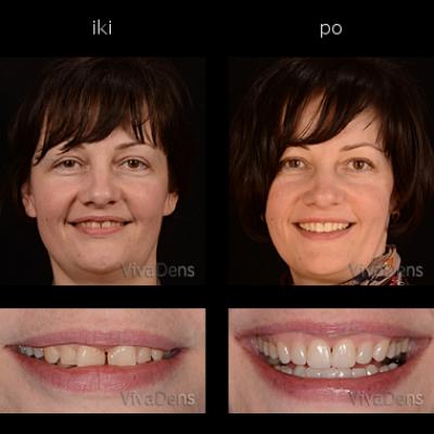 Greitoji estetinė suaugusiųjų ortodontija   (skaidriais breketais)
