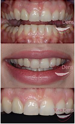 Skaitmeninis šypsenos dizainas (DSD) image004b