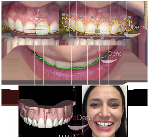 Skaitmeninis šypsenos dizainas (DSD) image005a