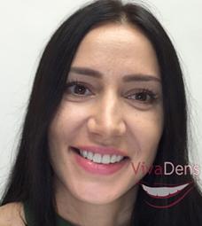 Skaitmeninis šypsenos dizainas (DSD) clip_image007