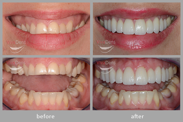 Periodontology. Photo before and after surgical recontouring of gingiva and jaw bone.