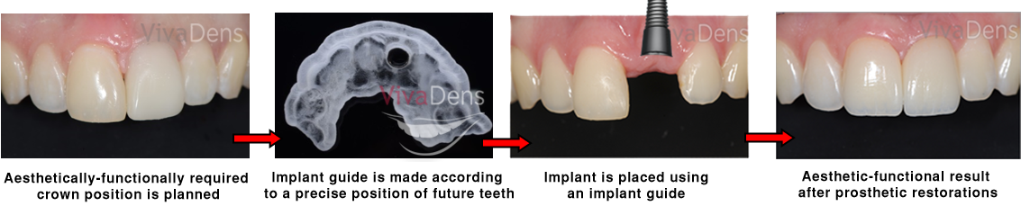Dental implant guided