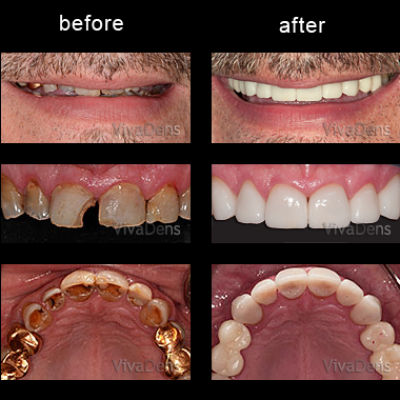 Indirect aesthetic restoration with CEREC in one day