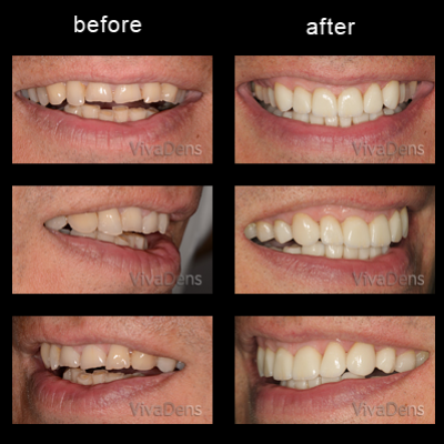 Indirect aesthetic restoration with CEREC in two days