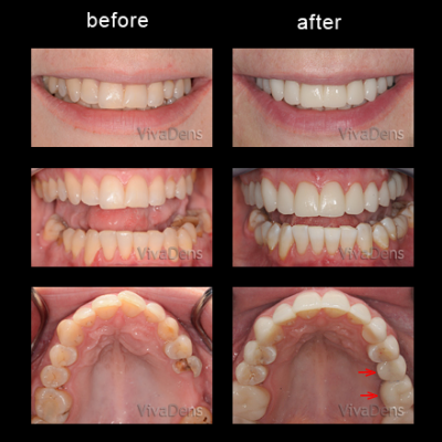 Implantation and indirect aesthetic restoration with CEREC
