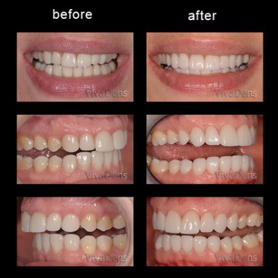 Indirect aesthetic restoration with CEREC in three days