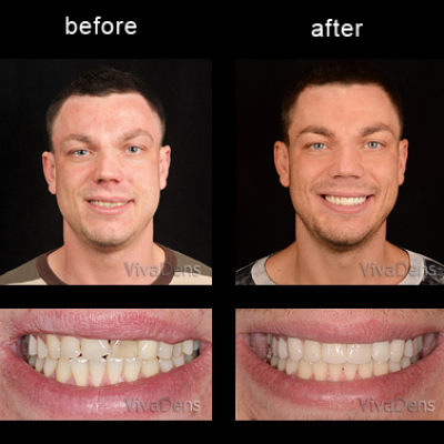 Short-Term Ortho and CEREC restorations