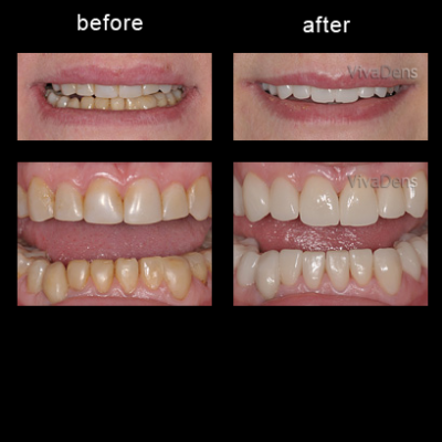 Indirect aesthetic restoration with CEREC