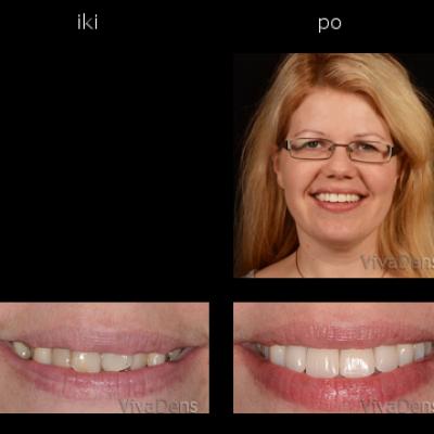 Greita estetinė suaugusiųjų ortodontija ir keramikos laminatės su CAD/CAM