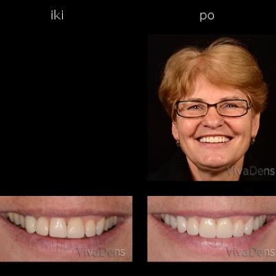 Estetinis dantų protezavimas CAD/CAM - CEREC, 3Shape