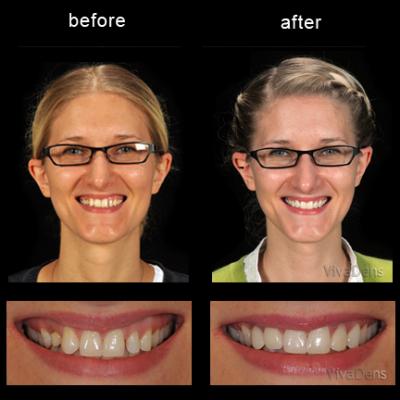 Changing teeth form