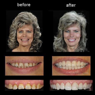 Restoration of teeth damaged by caries