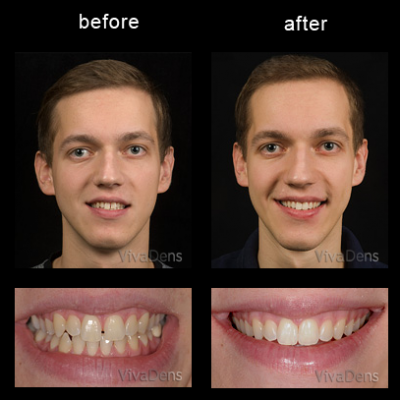 Short-Term Ortho Six Month Smiles