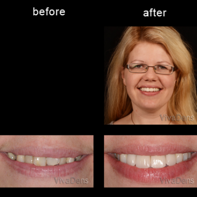 Short-Term Ortho Six Month Smiles and CEREC restorations