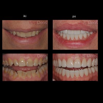 Greitoji estetinė suaugusiųjų ortodontija ir keramikos laminatės