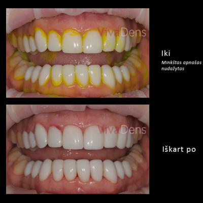 <br><br><br><br>Dantų foto Iki ir Po <br>profesionalios burnos higienos <br>procedūros Vivadens