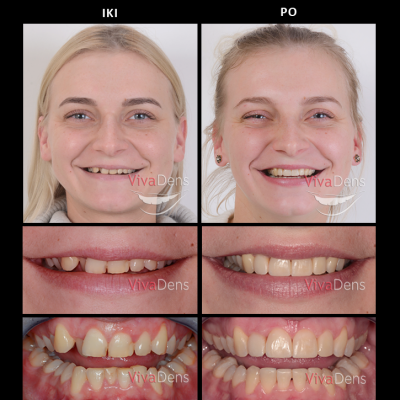 Greita estetinė suaugusiųjų ortodontija ir estetinis plombavimas