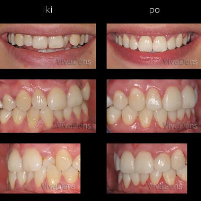 Greitoji estetinė suaugusiųjų ortodontija
