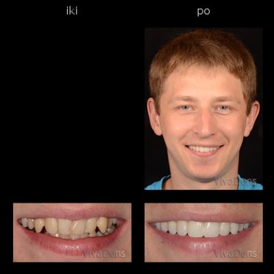 Greitoji estetinė suaugusiųjų ortodontija.Sangrūdos rekonstrukcija